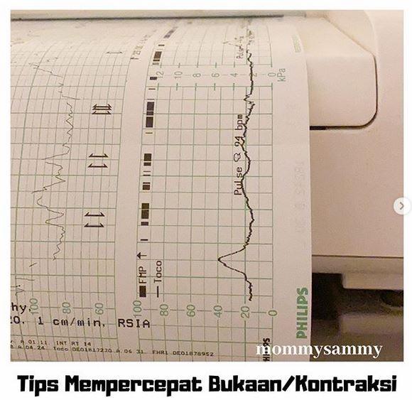 Tips Mempercepat Bukaan dan Kontraksi (persalinan normal)